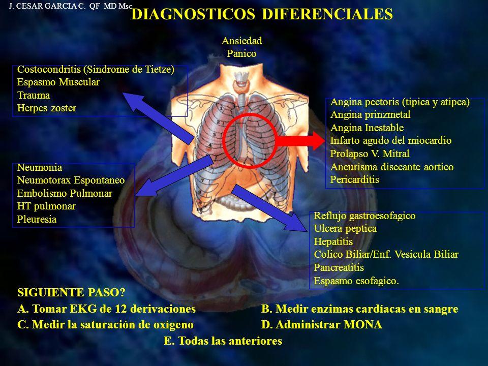 Angina pectoris (tipica y atipca) Angina prinzmetal Angina Inestable Infarto agudo del miocardio Prolapso V. Mitral Aneurisma disecante aortico Perica