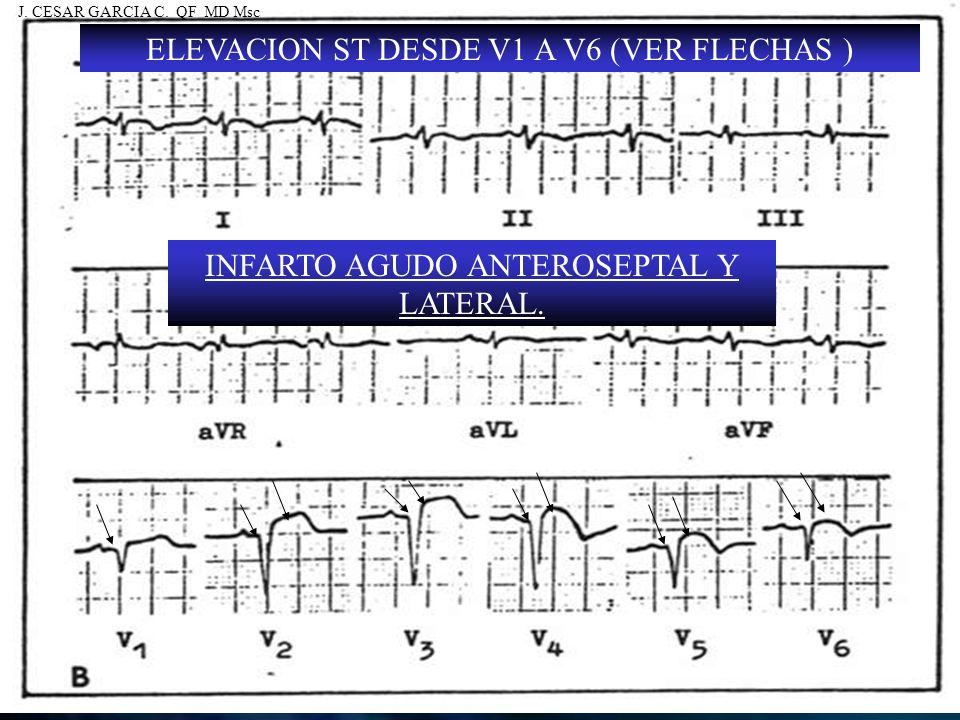 ELEVACION ST DESDE V1 A V6 (VER FLECHAS ) INFARTO AGUDO ANTEROSEPTAL Y LATERAL. J. CESAR GARCIA C. QF MD Msc