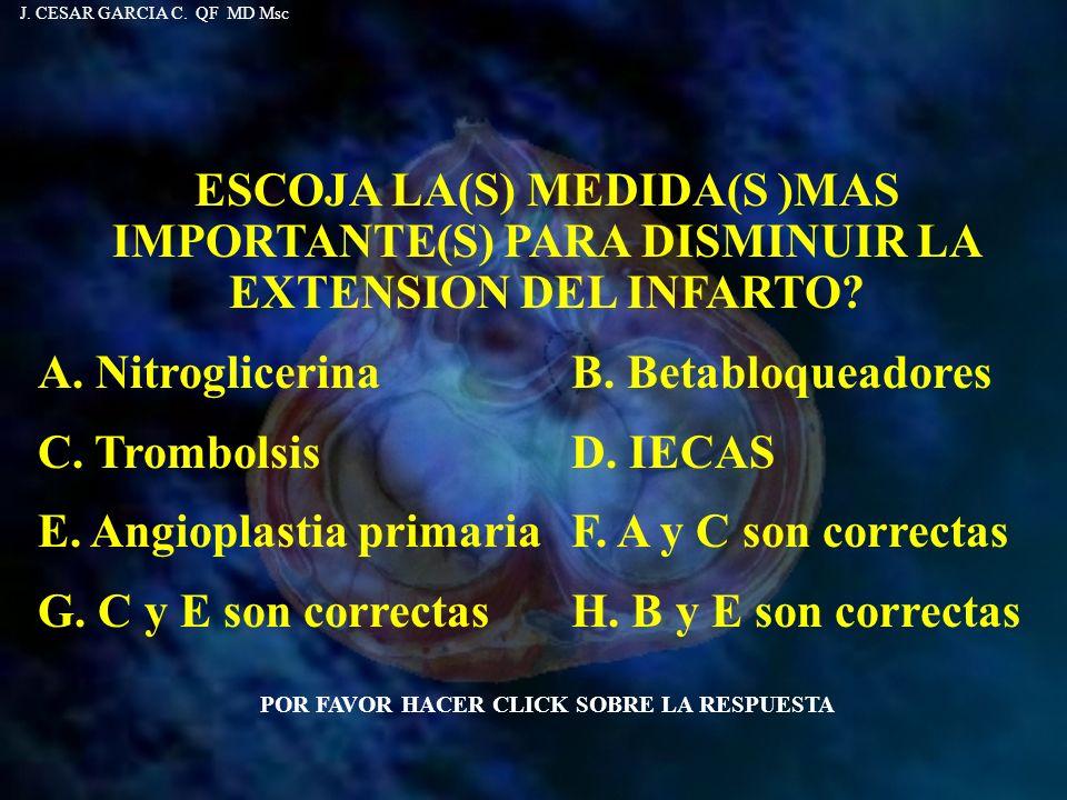 ESCOJA LA(S) MEDIDA(S )MAS IMPORTANTE(S) PARA DISMINUIR LA EXTENSION DEL INFARTO? A. Nitroglicerina B. Betabloqueadores C. Trombolsis D. IECAS E. Angi