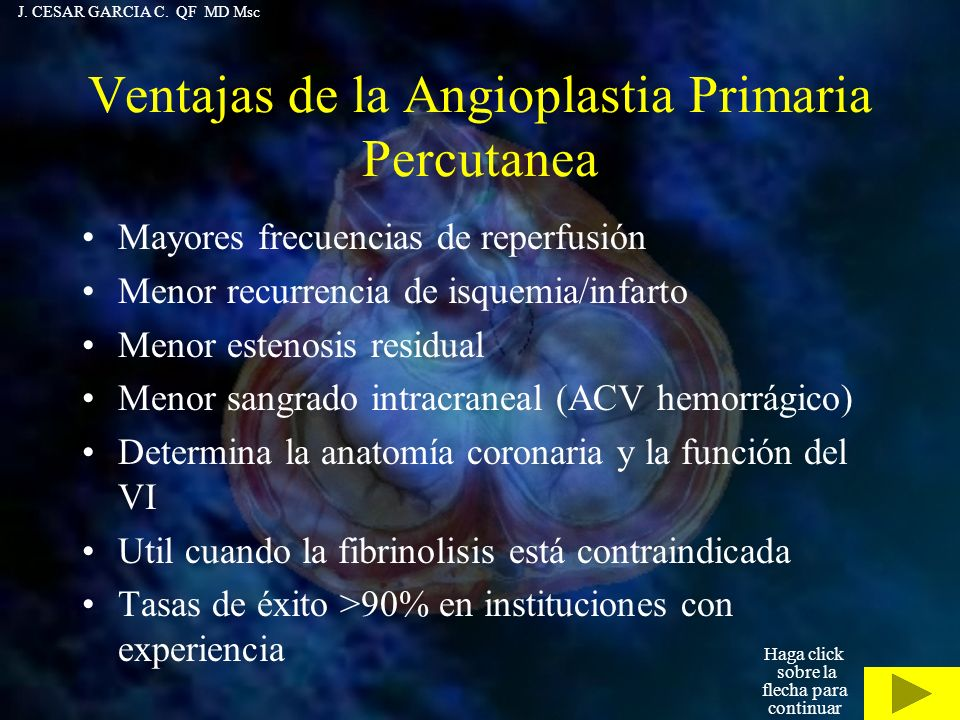 Ventajas de la Angioplastia Primaria Percutanea Mayores frecuencias de reperfusión Menor recurrencia de isquemia/infarto Menor estenosis residual Meno