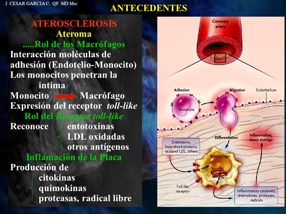 ANTECEDENTES ATEROSCLEROSIS Ateroma.....Rol de los Macrófagos Presenta antígenos a las células T Rol de los Linfocitos T Activación de Linfocitos Th1 Producción de citokinas Interferon Promueve la liberación de Interleukina 1 Factor de necrosis tumoral Interleukina 6 Proliferación músculo liso Anti-inflamación Citokinas antinflamatorias Interleukina 10 Factor de crecimiento transformante J.