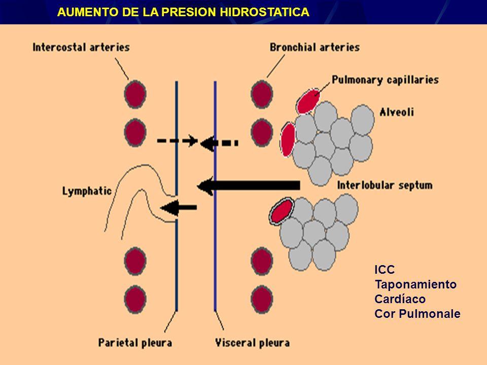 Derrame Pleural24 ICC Taponamiento Cardíaco Cor Pulmonale AUMENTO DE LA PRESION HIDROSTATICA