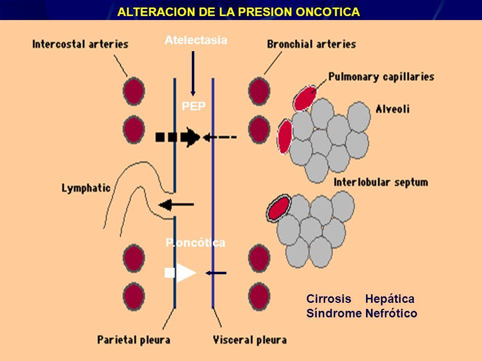 Derrame Pleural25 Atelectasia PEP P.oncótica Cirrosis Hepática Síndrome Nefrótico ALTERACION DE LA PRESION ONCOTICA