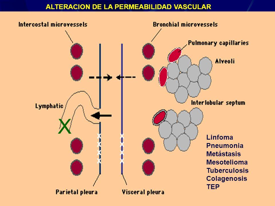 Derrame Pleural27 Linfoma Pneumonia Metástasis Mesotelioma Tuberculosis Colagenosis TEP X ALTERACION DE LA PERMEABILIDAD VASCULAR XXXXXXXX XXXXXXXX