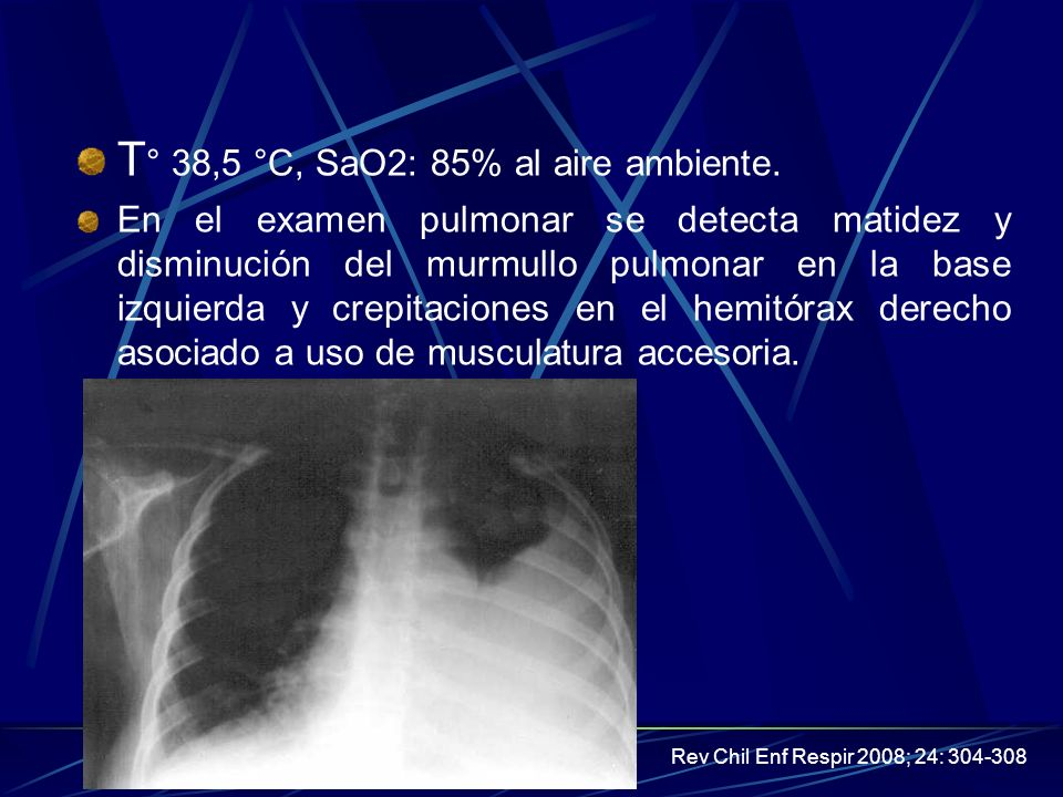 Derrame Pleural14 Etiologia Derrame pleural de causa dudosa investigacion.