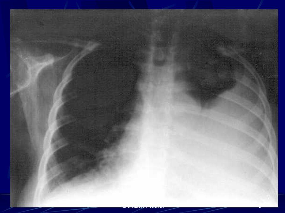 Derrame Pleural6
