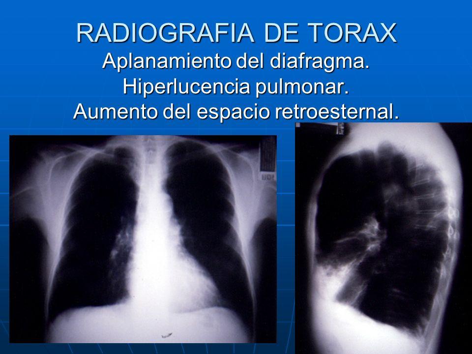 RADIOGRAFIA DE TORAX Aplanamiento del diafragma. Hiperlucencia pulmonar. Aumento del espacio retroesternal.