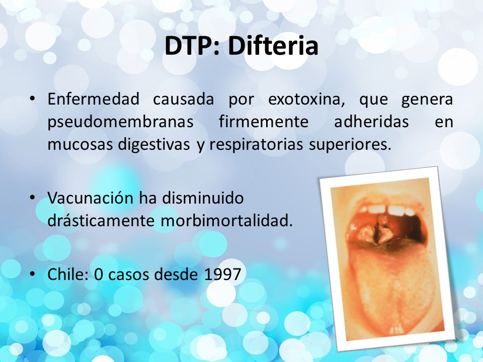 DTP: Difteria Enfermedad causada por exotoxina, que genera pseudomembranas firmemente adheridas en mucosas digestivas y respiratorias superiores.