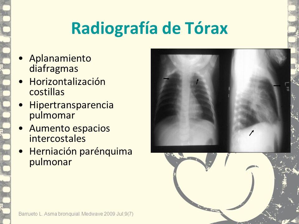 Radiografía de Tórax Aplanamiento diafragmas Horizontalización costillas Hipertransparencia pulmomar Aumento espacios intercostales Herniación parénqu