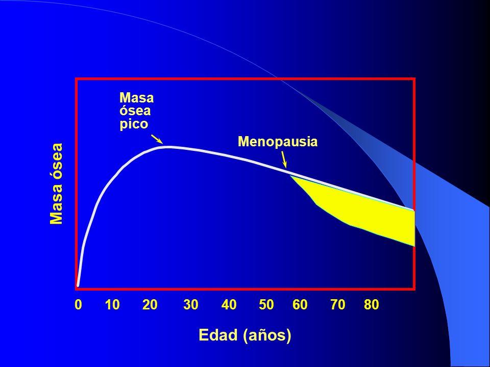 Edad (años) 0 10 20 30 40 50 60 70 80 Menopausia Masa ósea pico Masa ósea