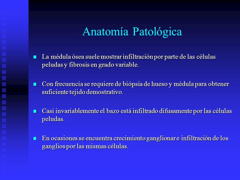 Anatomía Patológica La médula ósea suele mostrar infiltración por parte de las células peludas y fibrosis en grado variable. La médula ósea suele most