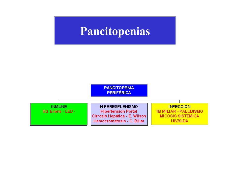Causas de Pancitopenias 1.