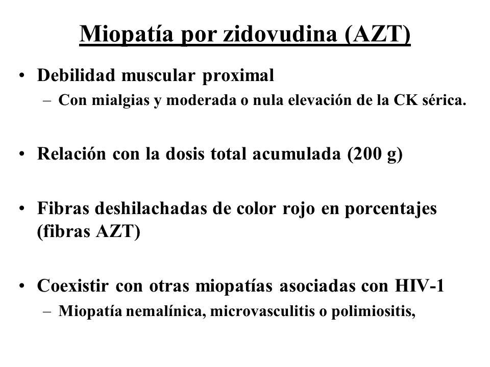 Debilidad muscular proximal –Con mialgias y moderada o nula elevación de la CK sérica. Relación con la dosis total acumulada (200 g) Fibras deshilacha