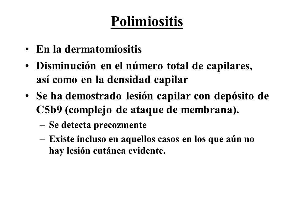 Polimiositis En la dermatomiositis Disminución en el número total de capilares, así como en la densidad capilar Se ha demostrado lesión capilar con de