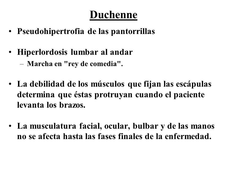 Pseudohipertrofia de las pantorrillas Hiperlordosis lumbar al andar –Marcha en