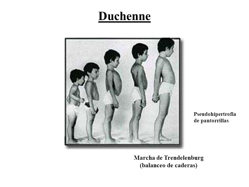 Marcha de Trendelenburg (balanceo de caderas) Pseudohipertrofia de pantorrillas Duchenne
