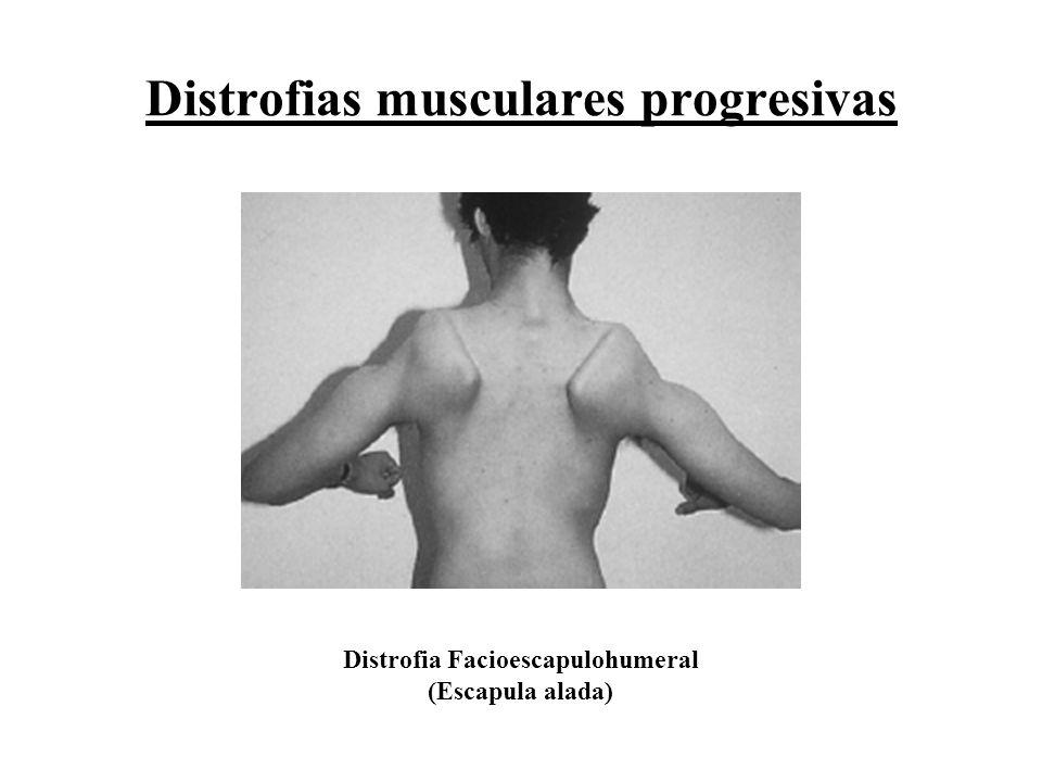 Distrofias musculares progresivas Distrofia Facioescapulohumeral (Escapula alada)