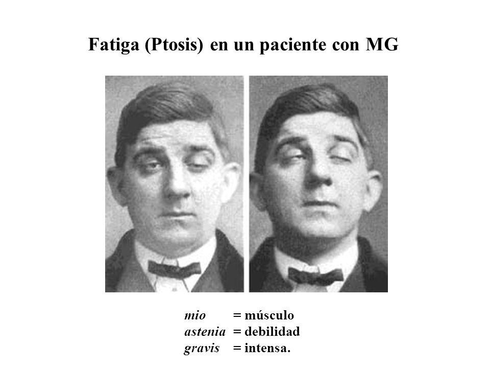 Fatiga (Ptosis) en un paciente con MG mio = músculo astenia = debilidad gravis = intensa.