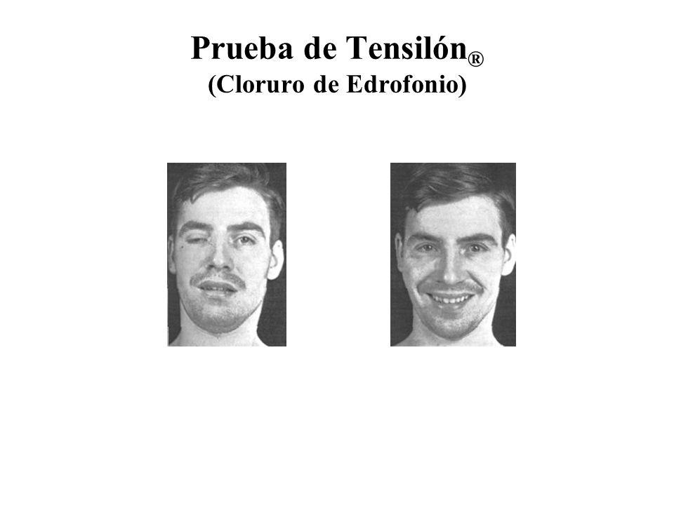 Prueba de Tensilón ® (Cloruro de Edrofonio)
