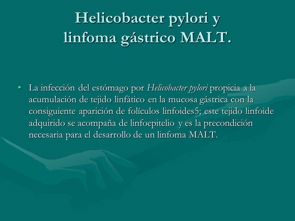 Helicobacter pylori y linfoma gástrico MALT. La infección del estómago por Helicobacter pylori propicia a la acumulación de tejido linfático en la muc