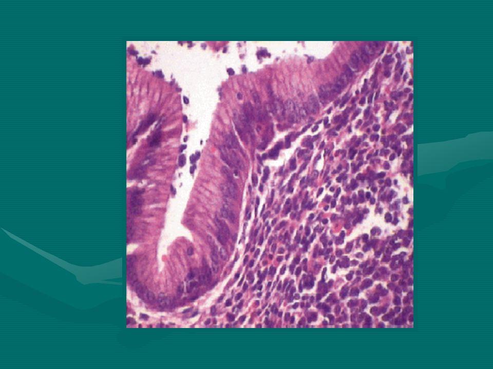 Linfomas Gástricos Los linfomas gástricos representan neoplasias malignas hematológicas de origen extranodal.