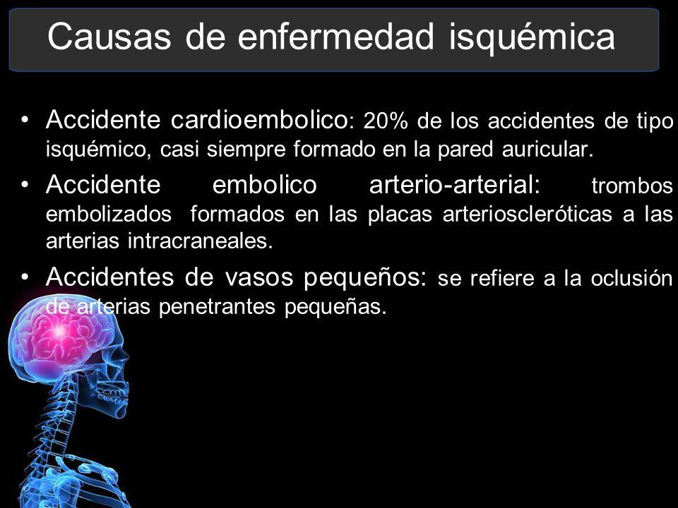 Causas de enfermedad isquémica Accidente cardioembolico : 20% de los accidentes de tipo isquémico, casi siempre formado en la pared auricular. Acciden