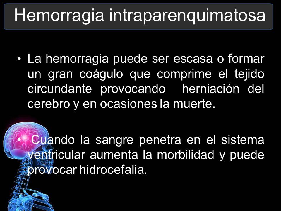 Hemorragia intraparenquimatosa La hemorragia puede ser escasa o formar un gran coágulo que comprime el tejido circundante provocando herniación del ce