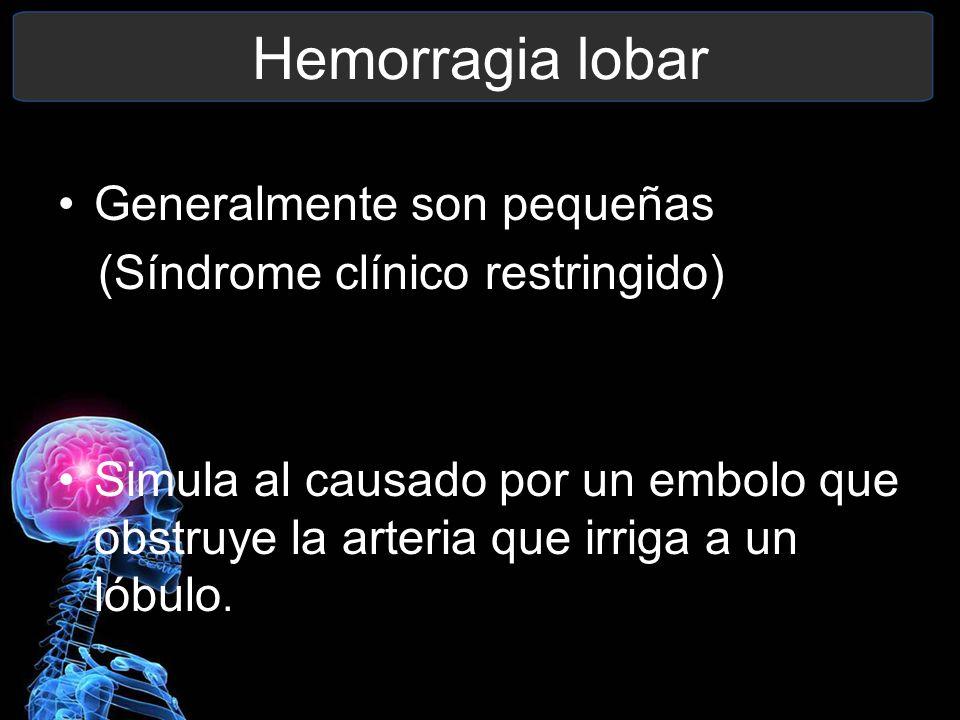 Hemorragia lobar Generalmente son pequeñas (Síndrome clínico restringido) Simula al causado por un embolo que obstruye la arteria que irriga a un lóbu