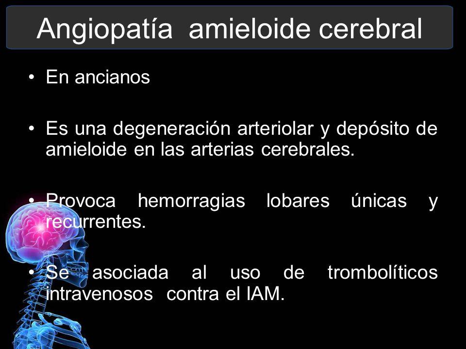 Angiopatía amieloide cerebral En ancianos Es una degeneración arteriolar y depósito de amieloide en las arterias cerebrales. Provoca hemorragias lobar