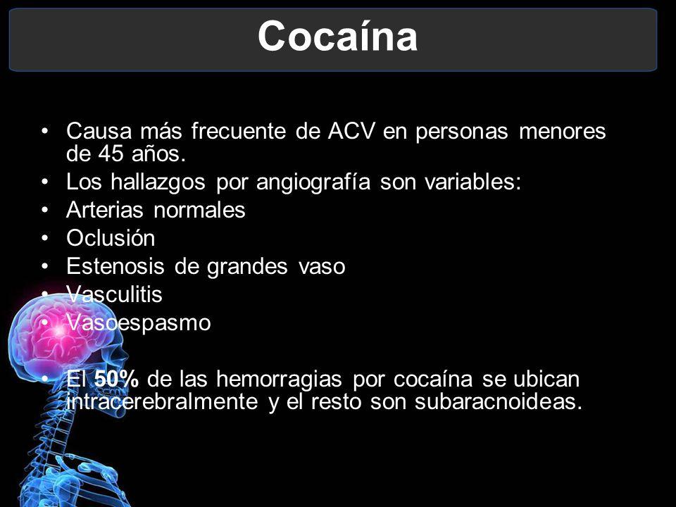 Cocaína Causa más frecuente de ACV en personas menores de 45 años. Los hallazgos por angiografía son variables: Arterias normales Oclusión Estenosis d