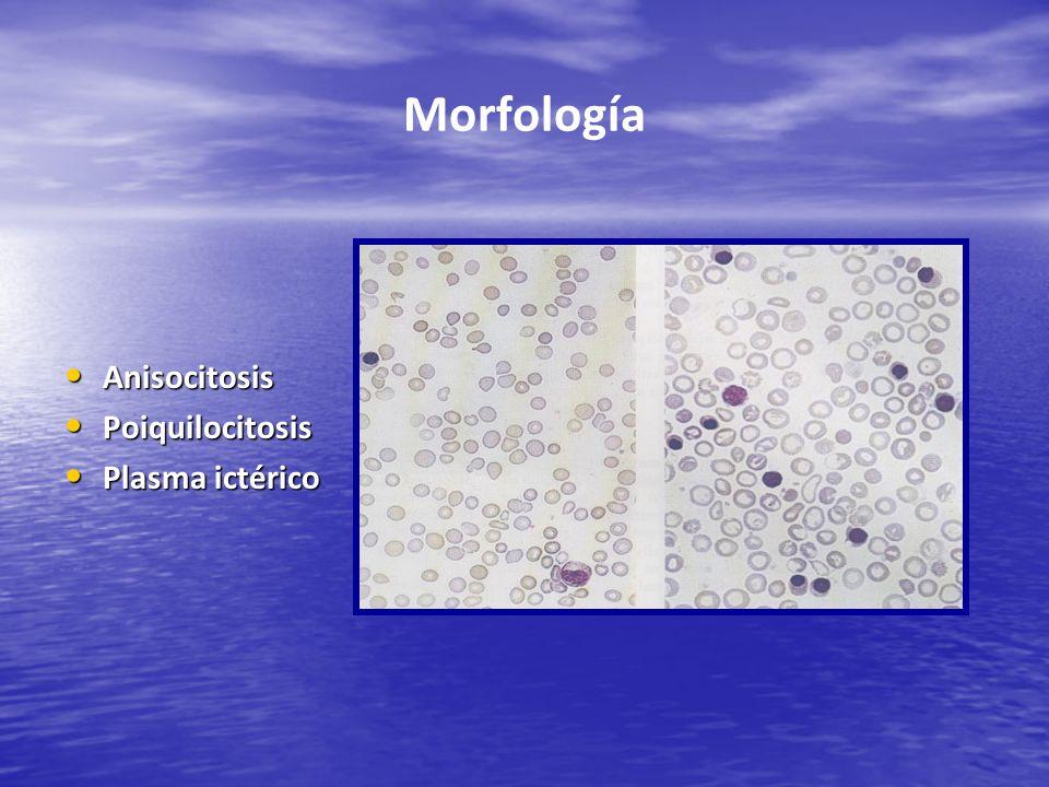Morfología Anisocitosis Anisocitosis Poiquilocitosis Poiquilocitosis Plasma ictérico Plasma ictérico
