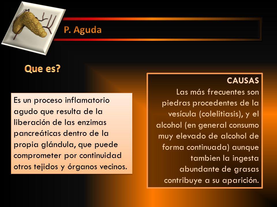 APROX 70 % SECUNDARIO A ALCOHOLISMO, PERO SOLO 10 % DE LOS ALCOHOLICOS PRESENTAN P.