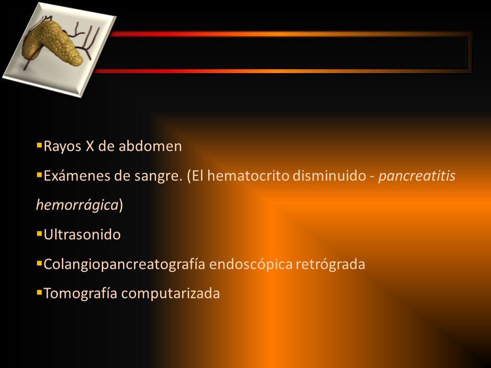 CLINICA ESTEATORREA ( FUNCION PANCREATICA A MENOS DEL 10 %) DIABETES MELLITUS DOLOR ABDOMINAL PERDIDA DE PESO