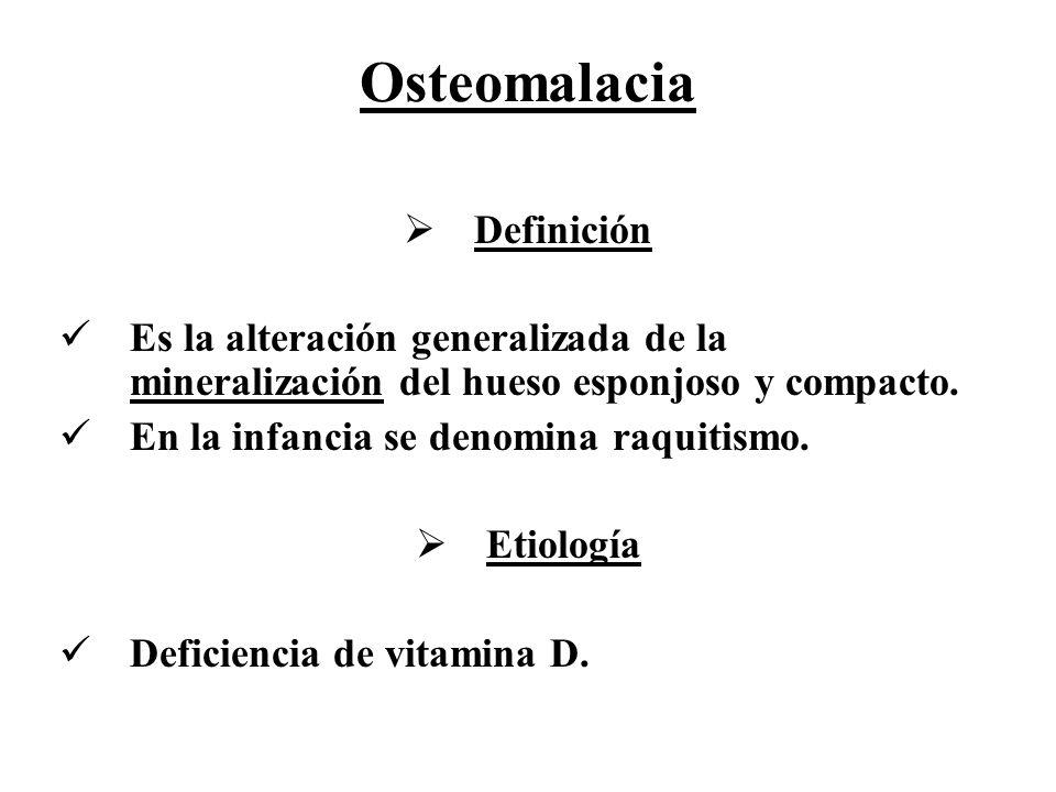 Osteomalacia Definición Es la alteración generalizada de la mineralización del hueso esponjoso y compacto. En la infancia se denomina raquitismo. Etio