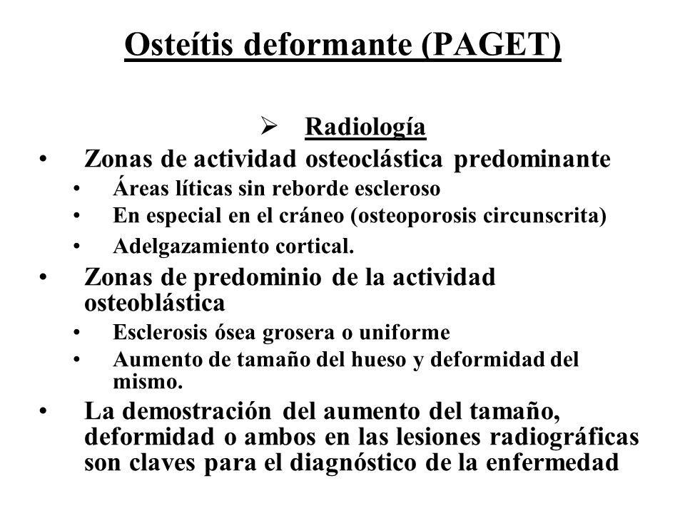 Osteítis deformante (PAGET) Radiología Zonas de actividad osteoclástica predominante Áreas líticas sin reborde escleroso En especial en el cráneo (ost