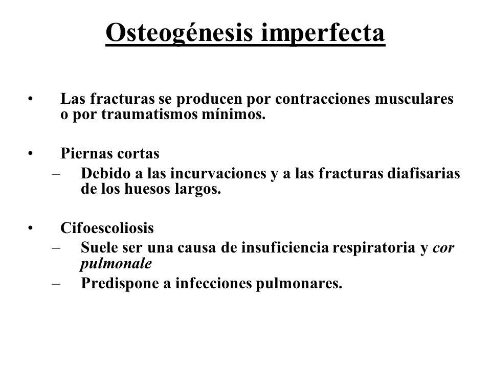 Osteogénesis imperfecta Las fracturas se producen por contracciones musculares o por traumatismos mínimos. Piernas cortas –Debido a las incurvaciones