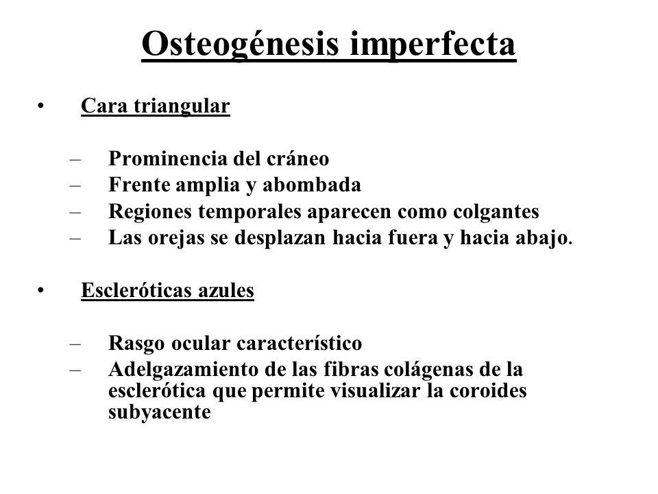 Osteogénesis imperfecta Cara triangular –Prominencia del cráneo –Frente amplia y abombada –Regiones temporales aparecen como colgantes –Las orejas se
