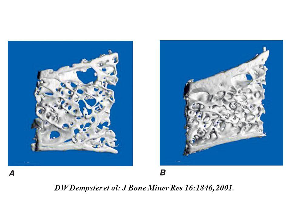DW Dempster et al: J Bone Miner Res 16:1846, 2001.