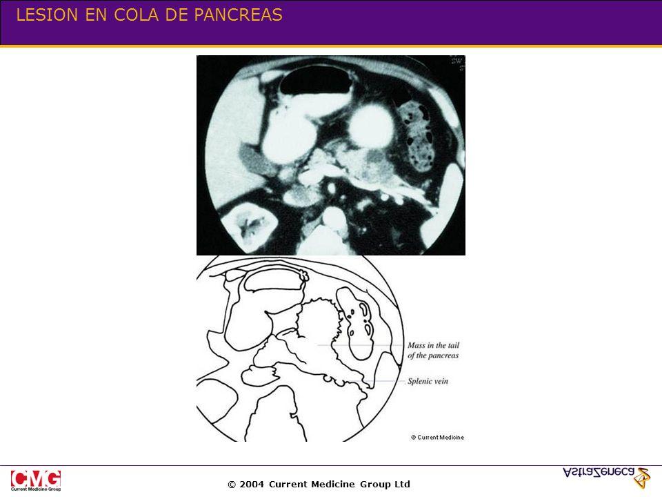 © 2004 Current Medicine Group Ltd LESION EN COLA DE PANCREAS