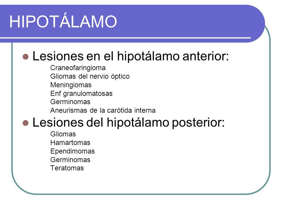 HIPOTÁLAMO Lesiones en el hipotálamo anterior: Craneofaringioma Gliomas del nervio óptico Meningiomas Enf granulomatosas Germinomas Aneurismas de la carótida interna Lesiones del hipotálamo posterior: Gliomas Hamartomas Ependimomas Germinomas Teratomas
