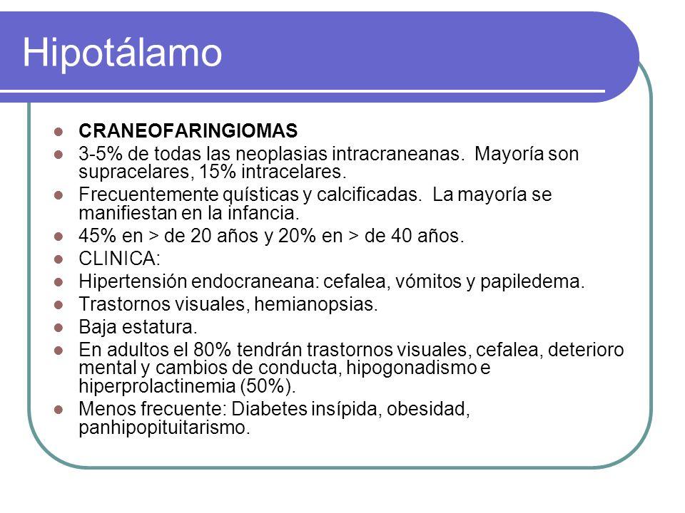 Hipotálamo CRANEOFARINGIOMAS 3-5% de todas las neoplasias intracraneanas.