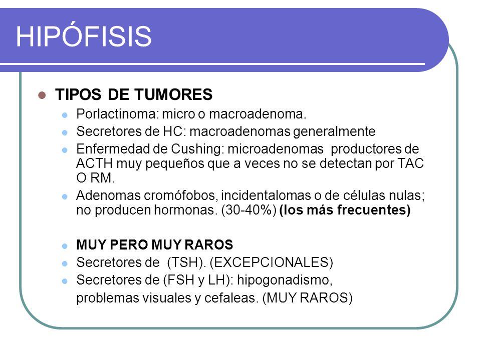 HIPÓFISIS TIPOS DE TUMORES Porlactinoma: micro o macroadenoma.