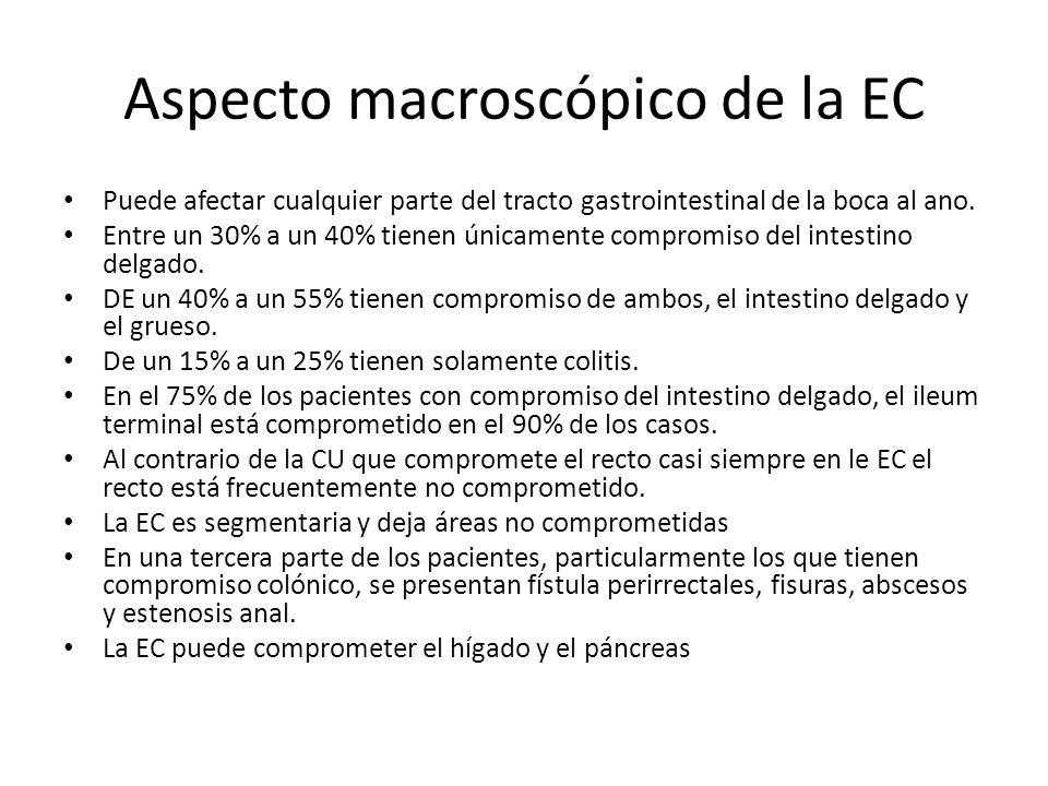 Aspecto macroscópico de la EC Puede afectar cualquier parte del tracto gastrointestinal de la boca al ano. Entre un 30% a un 40% tienen únicamente com