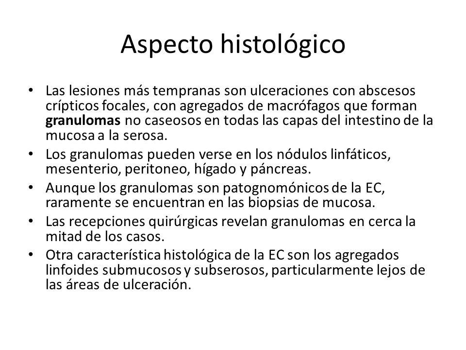 Aspecto histológico Las lesiones más tempranas son ulceraciones con abscesos crípticos focales, con agregados de macrófagos que forman granulomas no c