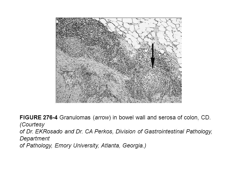 FIGURE 276-4 Granulomas (arrow) in bowel wall and serosa of colon, CD. (Courtesy of Dr. EKRosado and Dr. CA Perkos, Division of Gastrointestinal Patho