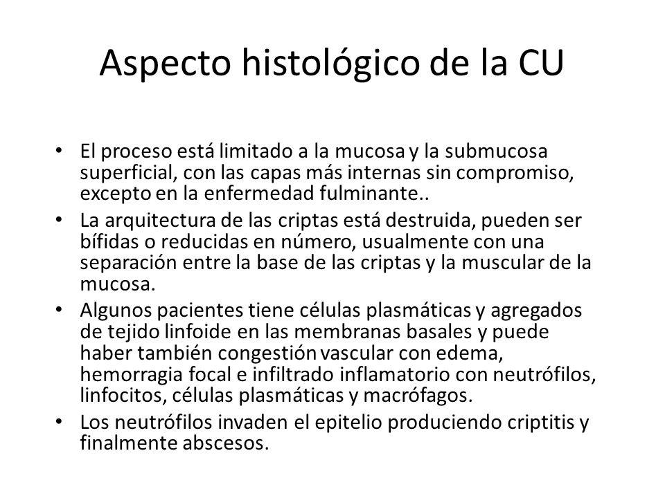 Aspecto histológico de la CU El proceso está limitado a la mucosa y la submucosa superficial, con las capas más internas sin compromiso, excepto en la