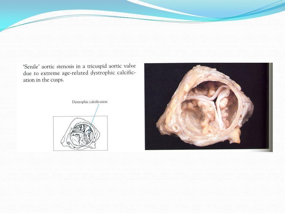 Causas raras de estenosis aórtica valvular adquiridas son: La hipercolesterolemia familiar Enfermedad reumática del corazón Lupus eritematoso sistémico Ochronosis Tratamiento con metilsergide Todas las formas de estenosis aórtica valvular causan obstrucción al flujo de salida y aumento de la presión sistólica del VI, produciendo HVI concéntrica; finalmente se puede llegar a producir fibrosis subendocárdica considerable debido a isquemia con miocardiopatía dilatada al final.