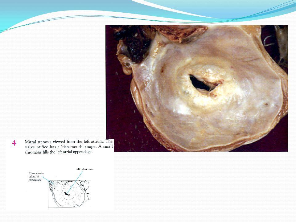 Dilatación auricular severa Congestión retrógrada del pulmón Bajo gasto Ventrículo izquierdo normal