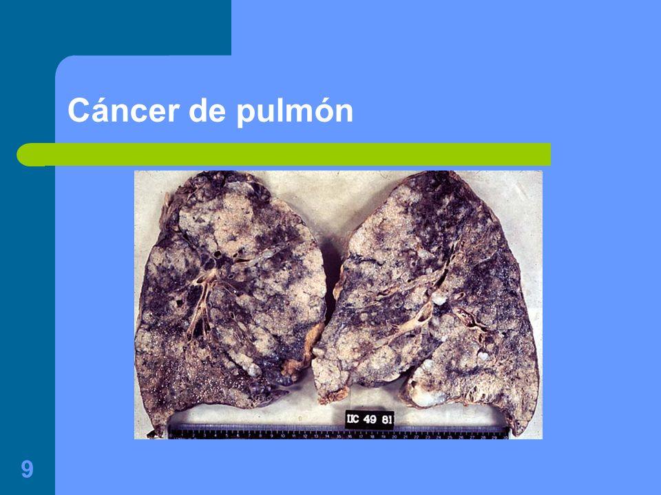 20 Efectos a largo plazo del humo del tabaco Sobre el sistema respiratorio: – Favorece la broncoconstricción – Disminuye la capacidad vital y aumenta el volumen residual – Irritación crónica de las mucosas rino-faríngea y por tanto disminuye la permeabilidad de la Trompa de Eustaquio – Irritación crónica de la mucosa bronquial – Fumar un paquete diario se pierde un 5-8% de capacidad de transporte de O 2 por la Hb.