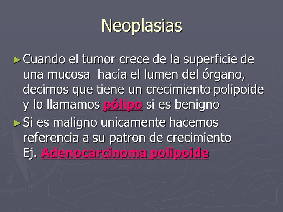 Neoplasias Cuando el tumor crece de la superficie de una mucosa hacia el lumen del órgano, decimos que tiene un crecimiento polipoide y lo llamamos pó